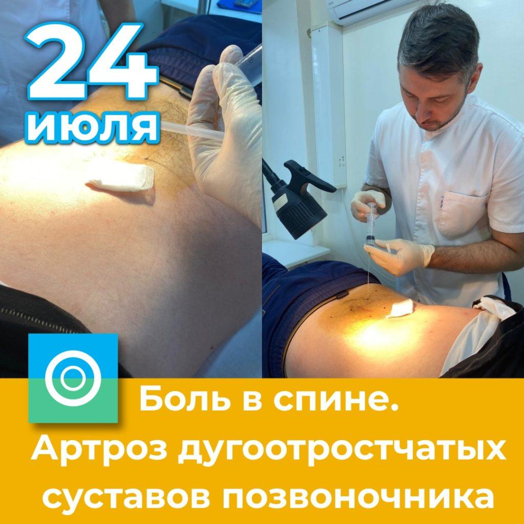 Боль в спине. Артроз дугоотростчатых суставов позвоночника