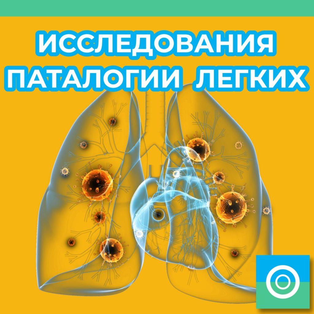 Исследование патологии легких можно пройти в центре «КТ диагностики»