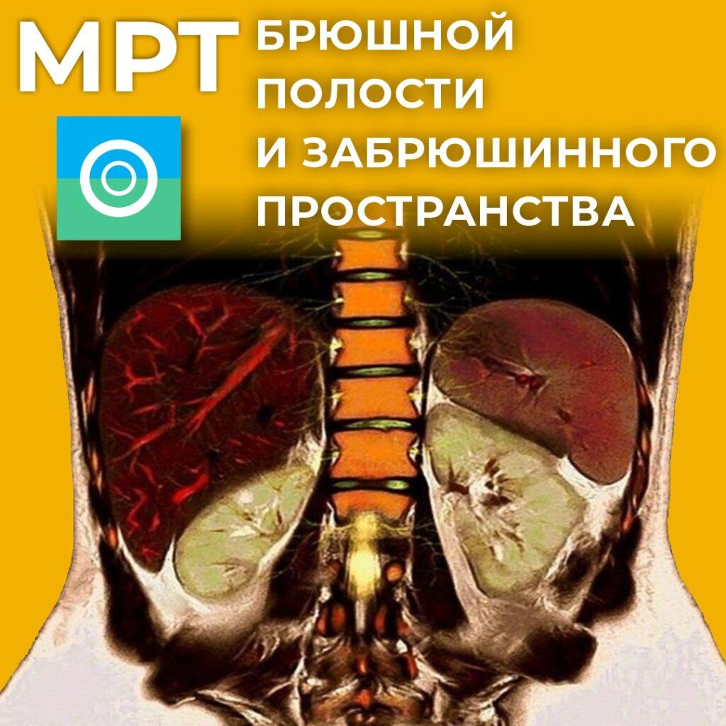 МРТ брюшной полости и забрюшинного пространства.