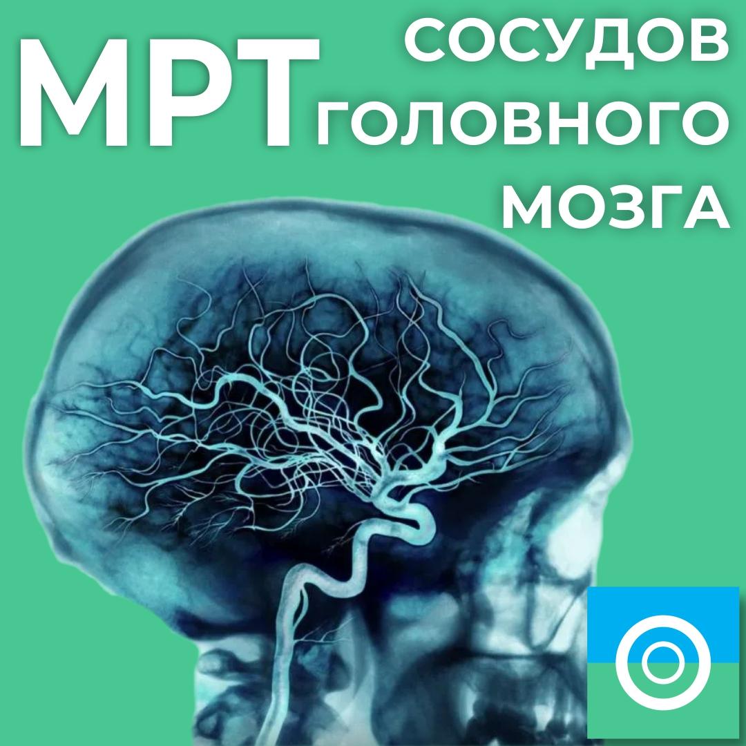 МРТ сосудов головного мозга (она же МР-ангиография сосудов головного мозга)